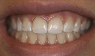 Teeth with more natural shape, color, and size