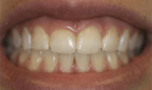 Short yellowed teeth