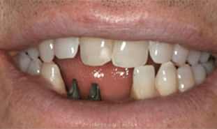 Smile with two dental implant posts visible