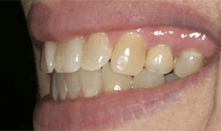 Smile with dental crown attached to implant