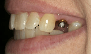 Dental implant post visible in gum tissue