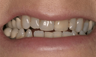 Yellowed teeth with large spaces