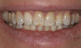 Discolored and worn teeth