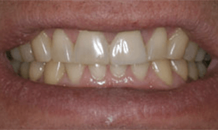 Stubby yellow teeth in smile line