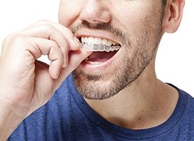 Man placing Invisalign tray