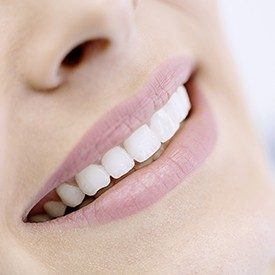 Closeup of flawless porcelain veneer treated smile