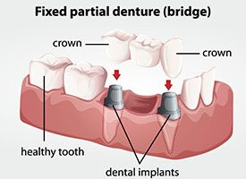 diagram of dental crown supported fixed bridge