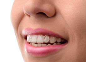 Woman with invisalign trays in, smiling